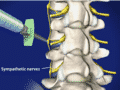Sympathetic Nerve Blocks